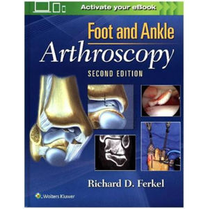 Foot & Ankle Arthroscopy, 2nd Ed. - neuveden